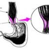 Ахалазия - симптомы и лечение- ахалазия пищевода-