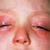 Аллергия на глазах, как проявляется? Как лечить?