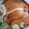 Артрезия пищевода у новорожденных детей