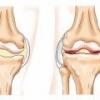 Артрит коленного сустава: симптомы, причины, лечение
