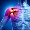 Артрит плечевого сустава: симптомы и лечение