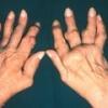 Артрит суставов пальцев рук: симптомы и лечение