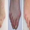 Артроз стопы: причины, симптомы, лечение