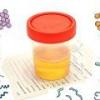 Бактерии в моче (бактериурия): причины, симптомы, лечение