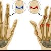 Биологическое лечение ревматоидного артрита: методы лечения и препараты