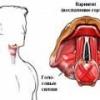 Боль в горле при глотании из-за ларингита