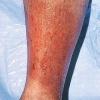 Чем опасен варикозный дерматит и можно ли его вылечить самостоятельно?