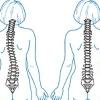 Чем поможет мануальный терапевт при болях в спине?