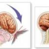 Черепно мозговая травма - последствия, реабилитация