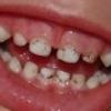 Что делать, если у ребенка налет на зубах?