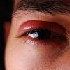 Что такое герпес глаза?