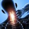 Что такое унковертебральный артроз?