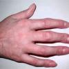 Деформация пальца