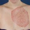 Дерматомикозы - причины, симптомы, диагностика и лечение