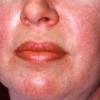 Дерматомиозит - причины, симптомы, диагностика и лечение