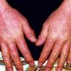 Диагностика и лечение аллергического дерматита