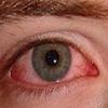 Дирофиляриоз: причины, симптомы, лечение