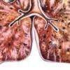 Диссеминированный туберкулез легких: симптомы, лечение
