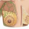 Фиброаденомы - причины, симптомы, лечение