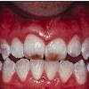 Флюороз - причины, симптомы, диагностика и лечение