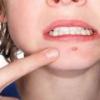 Фурункулы у детей: причины, симптомы и лечение