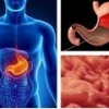Гастрит с пониженной кислотностью: симптомы и лечение