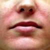 Где и почему может появиться грибок кожи