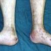 Гематогенный остеомиелит - причины, симптомы, диагностика и лечение