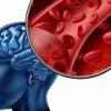 Геморрагический инсульт: причины, симптомы, лечение