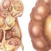 Гидронефроз почки - причины, симптомы, диагностика и лечение