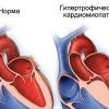 Гипертрофическая кардиомиопатия, причины, симптомы, лечение