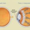 Глаукома - причины, симптомы, диагностика