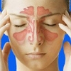 Гнойный гайморит, причины, симптомы, лечение