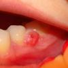 Гранулема зуба