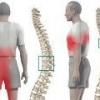 Грудной остеохондроз: симптомы и лечение