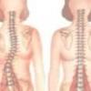 Грыжа шморля позвоночника: симптомы, лечение