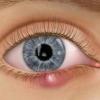 Халязион: симптомы, лечение и профилактика