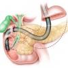 Холангит, симптомы и лечение