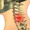 Хондроз шейного отдела: причины, лечение