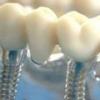 Имплантация зубов: главные факты