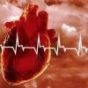 Инфаркт сердца, причины развития инфаркта сердца