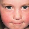 Инфекционная эритема - причины, симптомы, диагностика и лечение