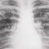 Инфильтративный туберкулез легких: симптомы, фазы, лечение