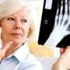 Инвалидность при ревматоидном артрите: причины