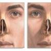 Искривление носовой перегородки: причины возникновения и лечение