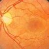 Из-за чего болит глазное дно?