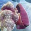Эмфизема легких - симптомы, лечение