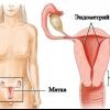 Эндометриоз матки: симптомы