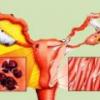 Эндометриоз: симптомы, признаки, лечение