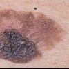 Как определить наличие меланомы и вылечить ее